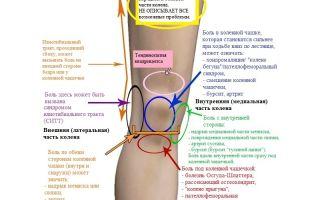 возьму боли в коленях при приседании лечение замечательная мысль