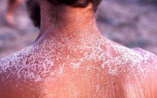 Вред от загара, на что влияет сильный загар, или солнечный ожег