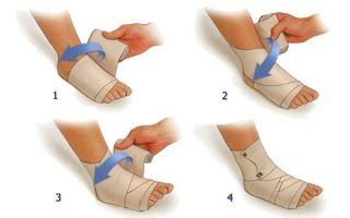 Растяжение связок голеностопного сустава, лечение в домашних условиях