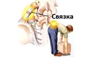 Сорвали спину, что делать? как лечить? виды травм и упражнения для лечения